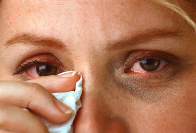 Почему при высокой температуре текут слезы