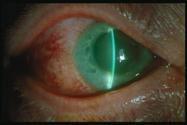 75895d45d7 Πρωτοπαθές γλαύκωμα κλειστής γωνίας. Χαρακτηρίζεται από οξείες κρίσεις  πόνου και ερυθρότητας