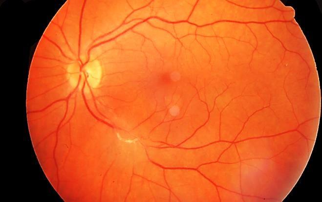 Ινστιτούτο Οφθαλμικής Φλεγμονής   Παθολογίας του Οφθαλμού 22f23351bfa